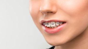 ارتودنسی دندان های فک بالا