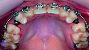 درمان ارتودنسی دندان بالا