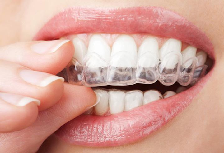 ارتودنسی دندان ژله ای-1