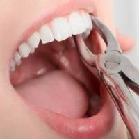 ارتودنسی با کشیدن دندان در چه شرایط خاصی رخ میدهد؟