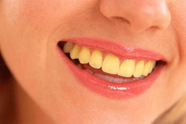 آیا دندان و ارتودنسی زرد شده را میشود سفید کرد؟