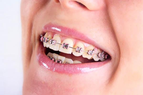 ارتودنسی زیبایی دندان چه کمکی به شما میکند