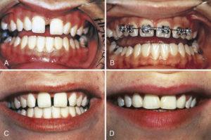 ارتودنسی فاصله دندان جلو-2
