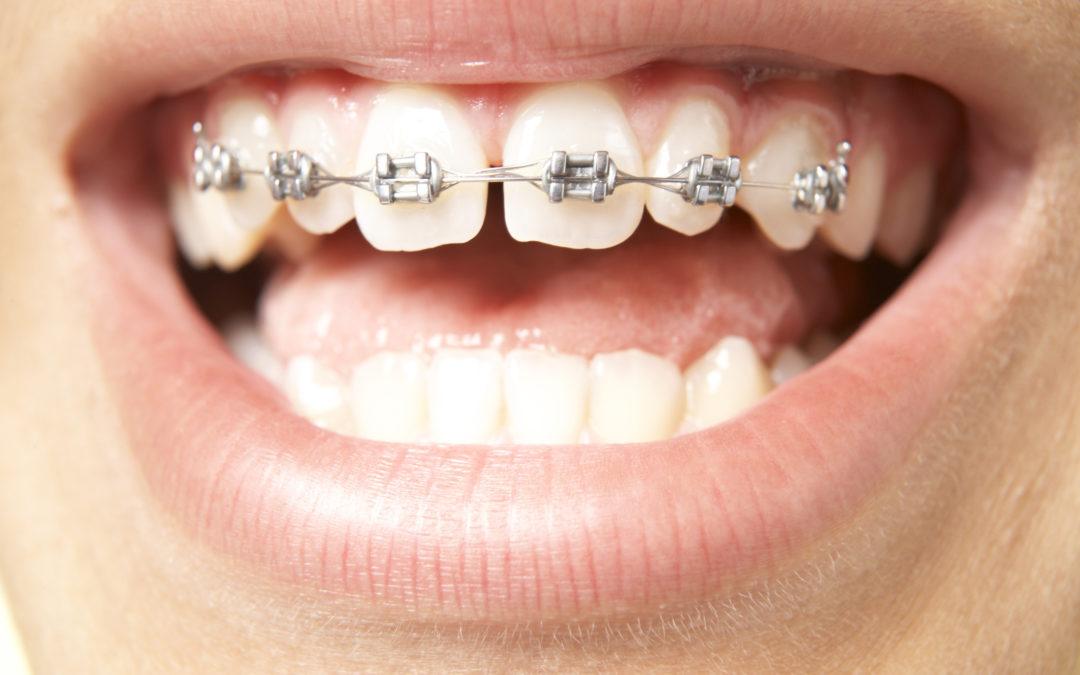 ارتودنسی فاصله دندان جلو-1