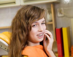 ارتودنسی دندان چه عوارضی دارد-1
