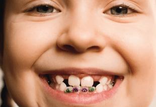 ارتودنسی چند دندان-1