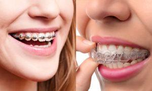 ارتودنسی چند دندان-2