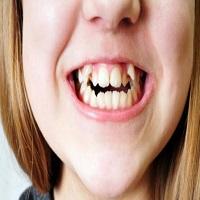 ارتودنسی دندان کج چگونه انجام می شود؟