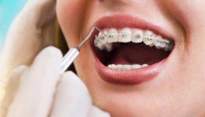 ارتودنسی دندان تا چه مدت طول میکشد؟